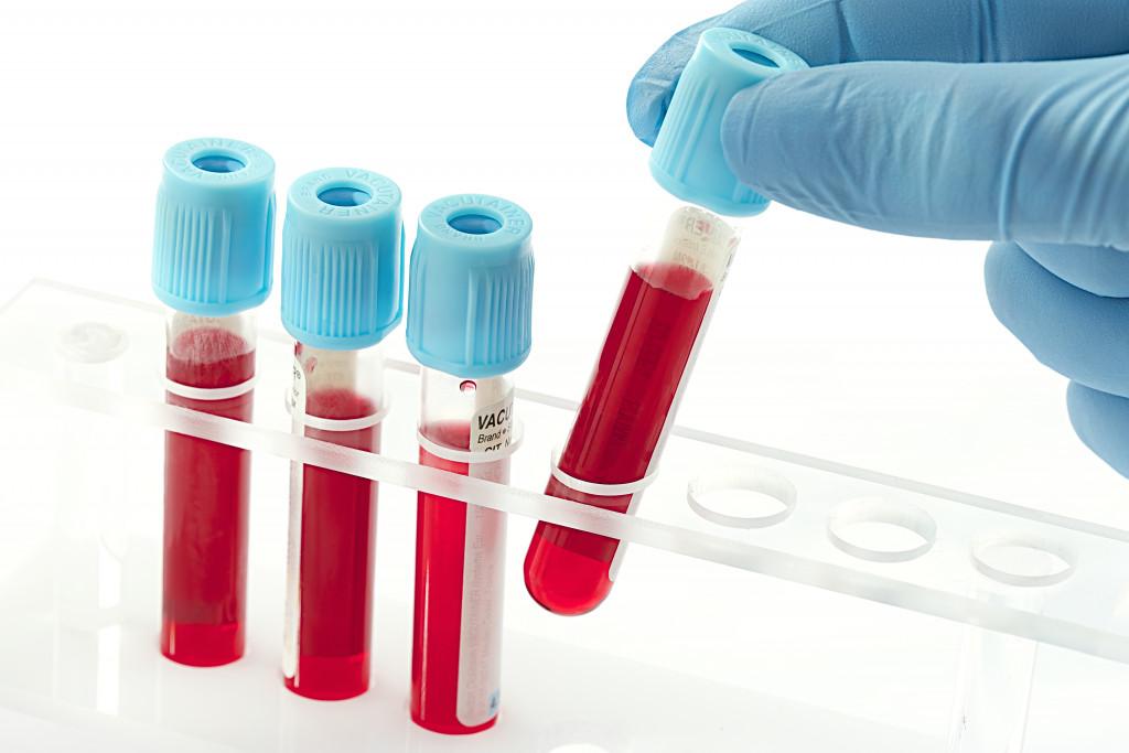blood inside test tubes